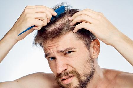 انواع ریزش مو و راه درمان ریزش مو hair loss type