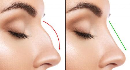از بین بردن قوز بینی با آرایش nasal hump makeup