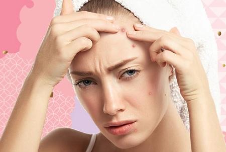 جوش پیشانی و روش های درمان Forehead pimples