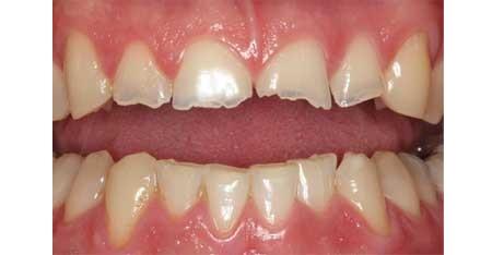 چه چیزی باعث خرد شدن دندان ها می شود؟ causes grind
