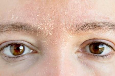 همه چیز درباره ی پوسته پوسته شدن صورت facial scaling