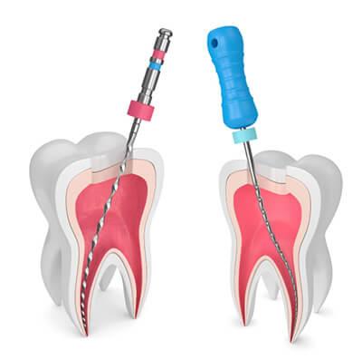 ریشه دندان یا عصب کشی دندان Tooth roots or denervation