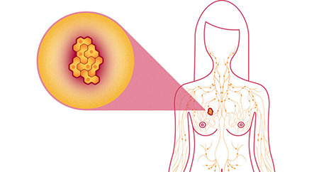سرطان سینه Breast Cancer